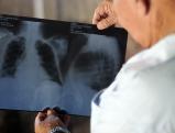 Arbeiter leidet an Lungenkrebs