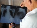 Asbestopfer mit Lungenkrebs